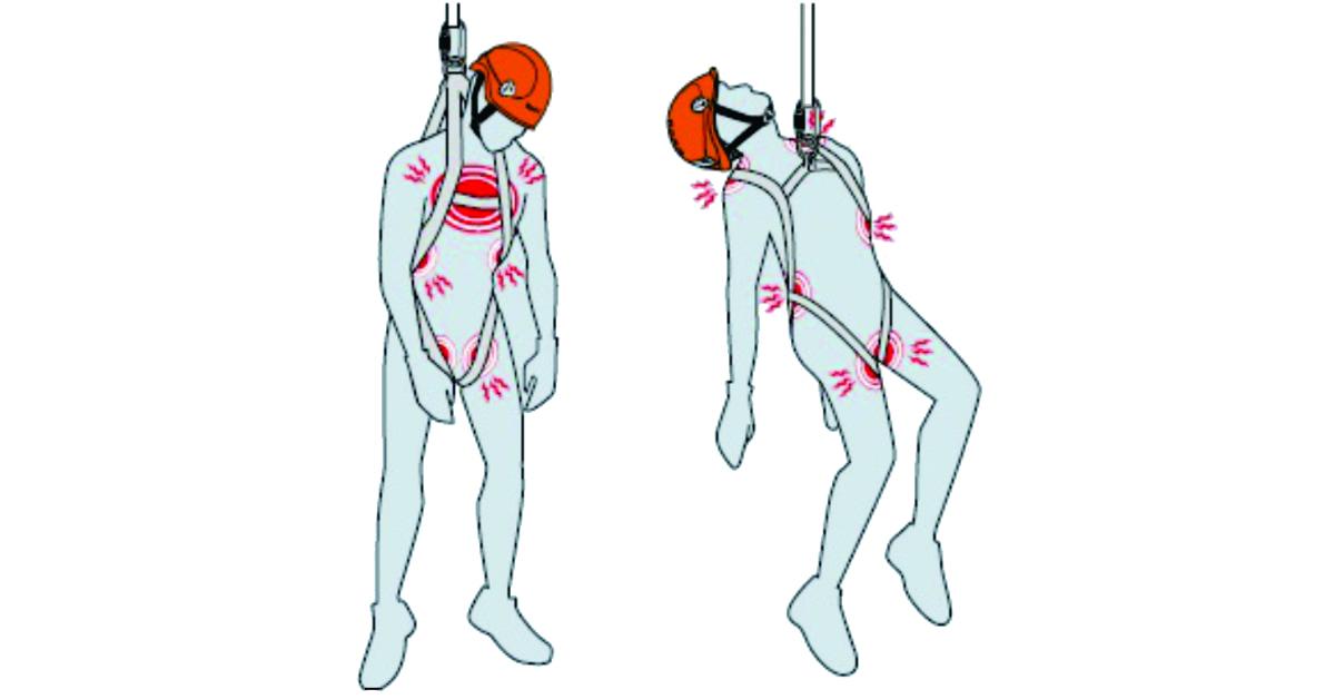 Síndrome da Suspensão Inerte